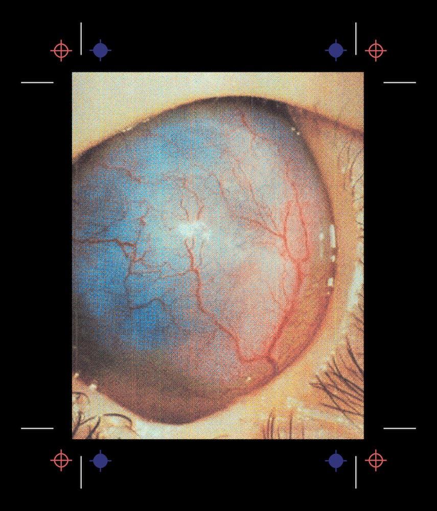 Image of eyeball with no cornea, iris, or pupil